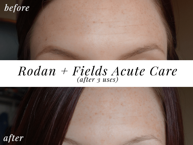 Rodan + Fields Acute Care before and after #iFabboMember #ExpressYourself